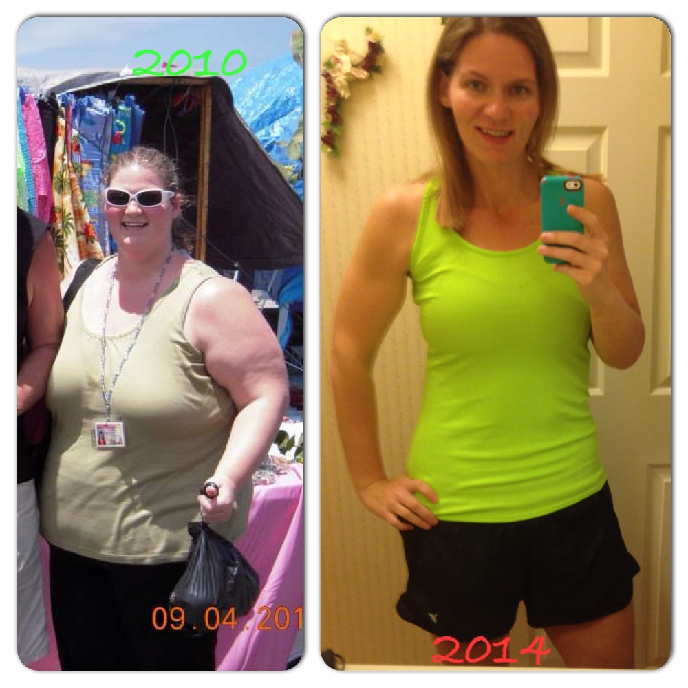 weight loss success story before after picture lap band