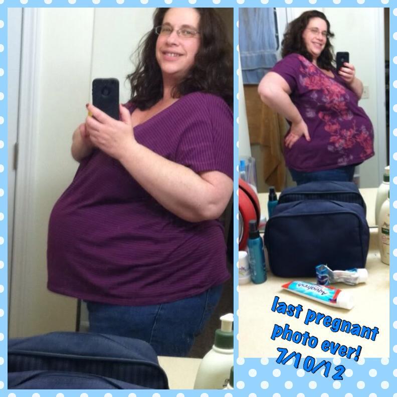 Wellbutrin xl weight loss
